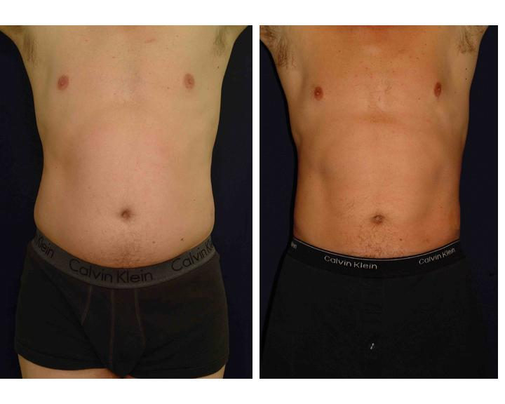 liposuction-pictures - picture taken from http://surgeon-rhinoplasty.com/2010/12/14/liposuction-pictures/